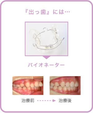 「出っ歯」にはバイオネーター