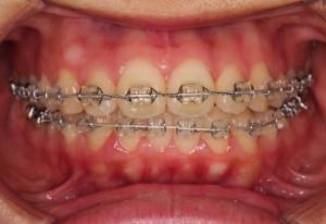 久しぶりの歯医者???