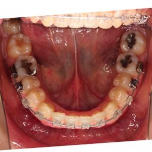 下の歯ワイヤーチェンジの巻