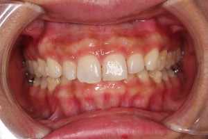 左上犬歯😭