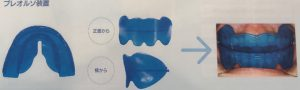 矯正治療日記 vol.27 「プレオルソってどんな歯列矯正治療?」