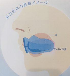 矯正治療日記 vol.28 「プレオルソってどんな歯並びを治せるの?」